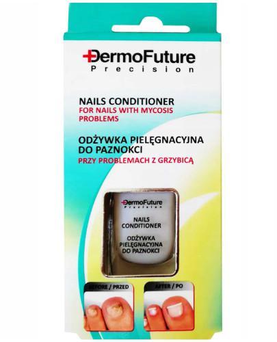 Dermo Future odżywka pielęgnacyjna do paznokci przy problemach z grzybicą 9 ml